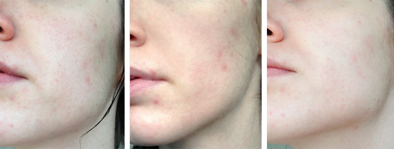 FAIIINT reviews ESPA Enzyme Facial at Creme Hair & Beauty Salon Oakham Leicestershire, before & after treatment photos